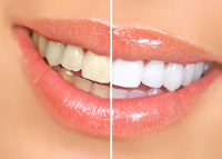 Cosmetic Dentistry - Lexington MA - Prosthodontist