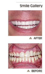 Dental Implants - Lexington MA - Prosthodontist - Dentist